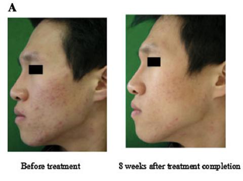 Fig.1.-Miglioramenti-delle-lesioni-dellacne-mostrati-in-un-ragazzo-di-23-anni