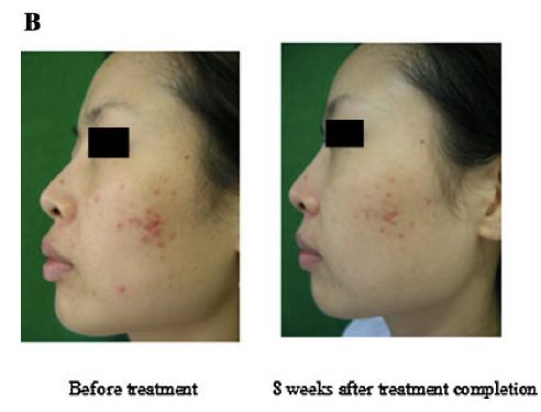 Fig.1.-Miglioramenti-delle-lesioni-dellacne-mostrati-in-una-ragazza-di-23-anni