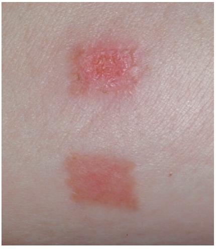 Figura-2.-La-guarigione-delle-ferite-è-accelerata-dalla-fotomodulazione-a