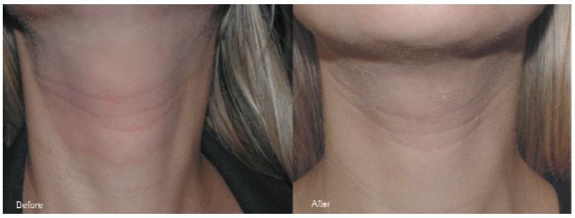 Figura-6.-Evoluzione-delleczema-a-topico-dopo-due-trattamenti-di