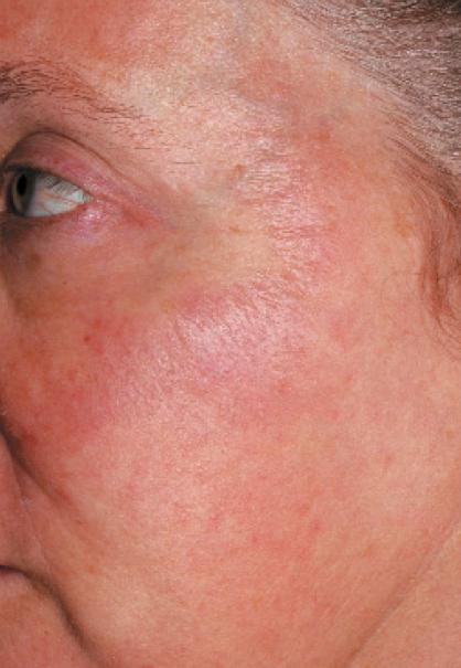 Figura-7.-Cambiamenti-della-pelle-causati-dal-Levulan-con-LED-dopo-24-ore