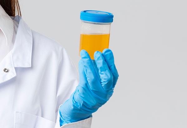 ph-reagente-acqua-alcalina-ionizzata-meglio-in-salute-ant-3
